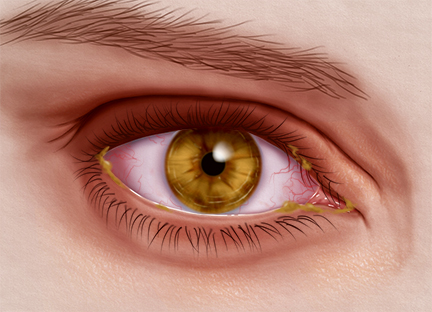 How Irritating Can Bacterial Eye Infection Be